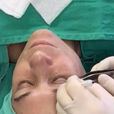ImageLift Eyelid Surgery – LIVE